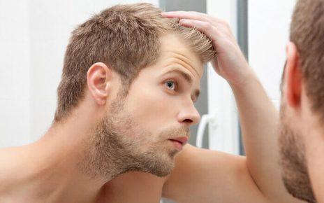 male-hair-loss-guestpost | blog post hairloss