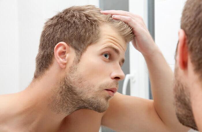 male-hair-loss-guestpost   blog post hairloss