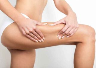 7 Most Effective Cellulite Fixes and Treatment