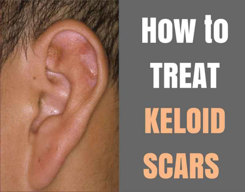 What Is The Best Treatment For Ear Keloid?