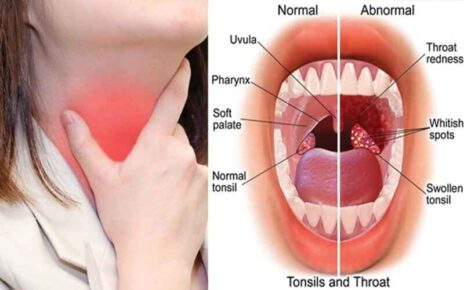 Differences Between Tonsillitis And Streptococcal Infection