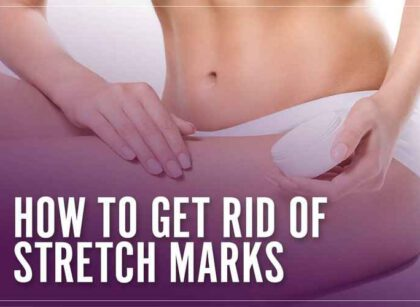 How to Remove Stretch Marks and Eye Bags Easily